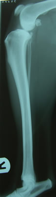 Tibial Tuberosity Advancement (TTA) before